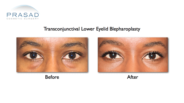 Eye Bag Surgery on African Skin