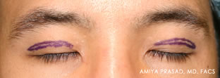 Asian blepharoplasty preop