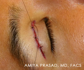 Asian-eyelid-double-fold-surgery
