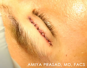 Asian-eyelid-surgery-showing-sutures-placed