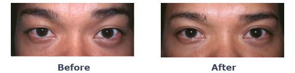 Asian Man Before and After photos for double eyelid surgery