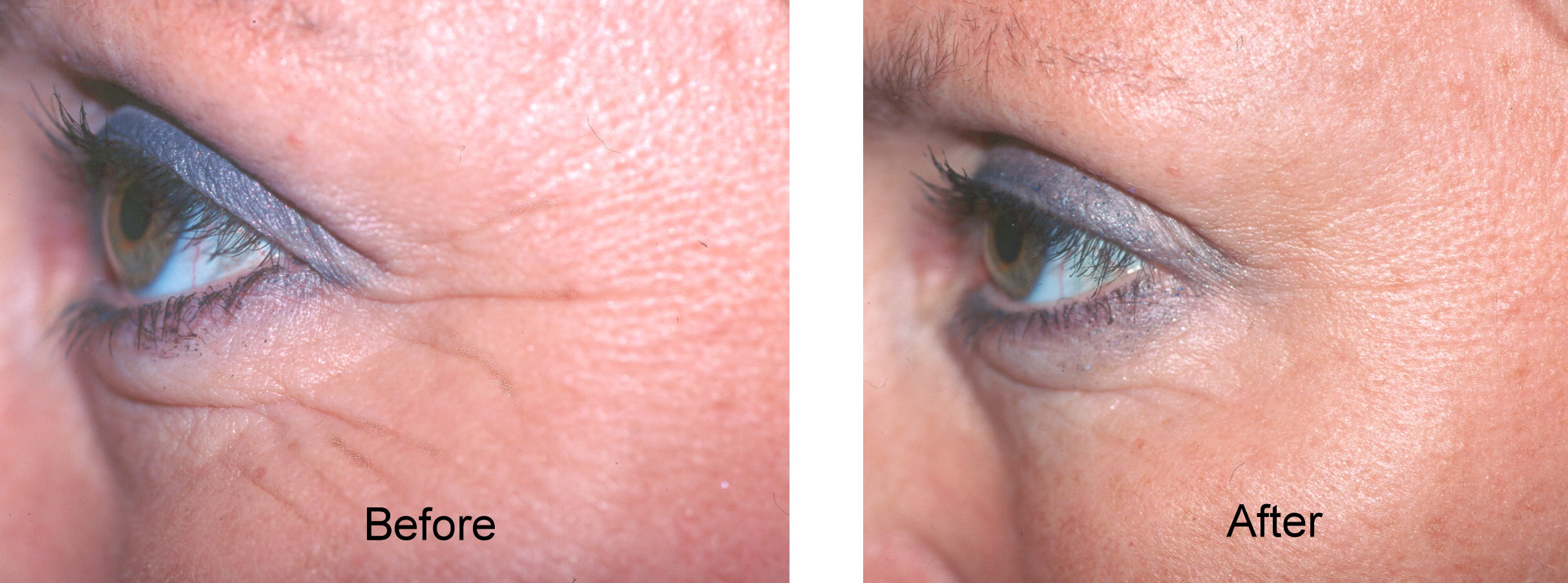Botox Dysport crows feet lines