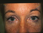 Fem upper eyelids preop 2