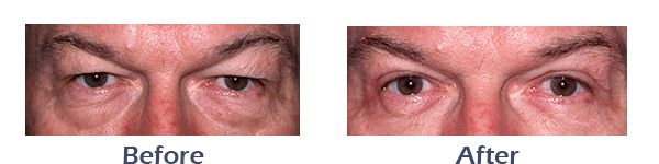 Male Eyelid Surgery Before and After