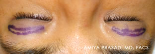 Surgeon-view-Asian-eyelid-surgery-after-anesthetic-injected