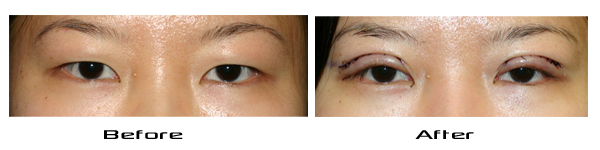 before and immediately after Asian Blepharoplasty.