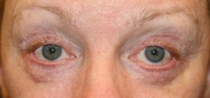 bad plastic surgery - eyelid surgery