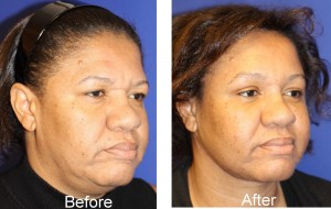 before and after coronal eye brow lift