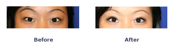 Asian Woman Before and After photos for double eyelid surgery