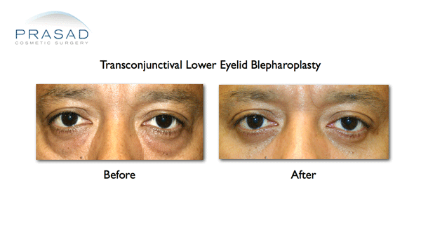 Eye Bag Surgery for Darker Skin