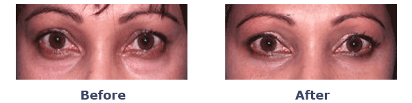 female under eye bags before and after