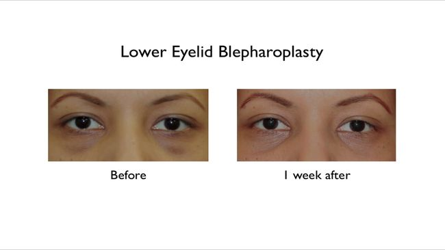 lower eyelid blepharoplasty on dark skin