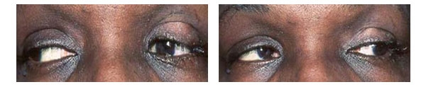 Artificial Eye before and after implant