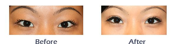 Asian Eyelid before and after