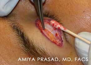 Asian Eyelid Plastic Surgery