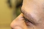 after eyebrow transplant