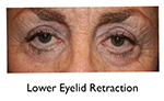 before lower eyelid retraction