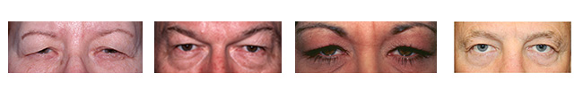 upper eyelid blepharoplasty before and after performed by Dr Prasad of New York