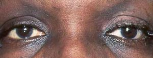 Artificial Eye Surgery results