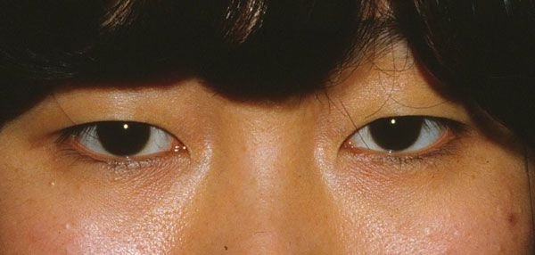 double eyelid not present