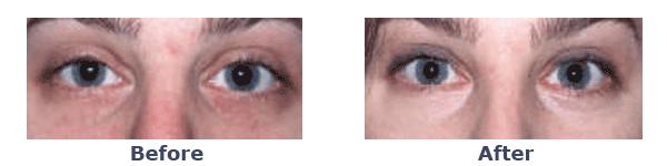 before-and-after Erbium Laser Skin Resurfacing