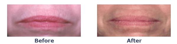 laser skin rejuvenation on lip lines