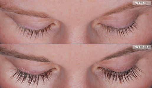 Latisse Eyelash Growth Before and After