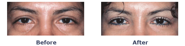 lower eyelid surgery before and after performed by blepharoplasty specialist of New York
