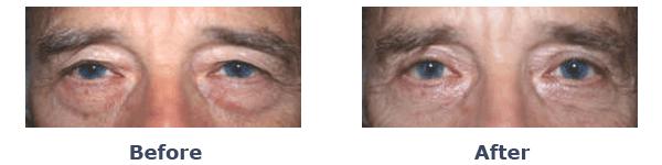 old man bags under eyes
