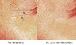 Single Pelleve Treatment For PeriOrbital Rhytids