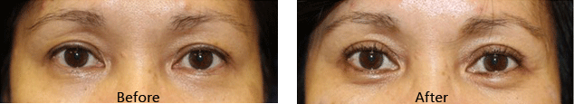 pelleve treatment for eye area before and after