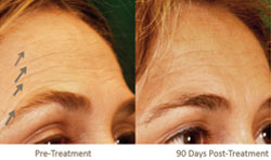 Single Pelleve Treatment For Forehead Wrinkles