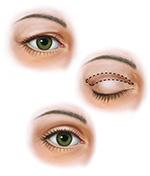 upper blepharoplasty illustration