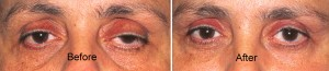 ptosis surgery for disease related ptosis
