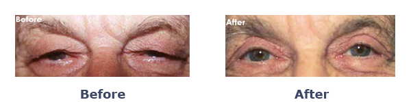 Before And After Ptosis Surgery Female