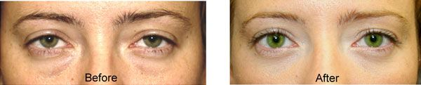 lower eyelid blepharoplasty before and after performed by Dr. Prasad