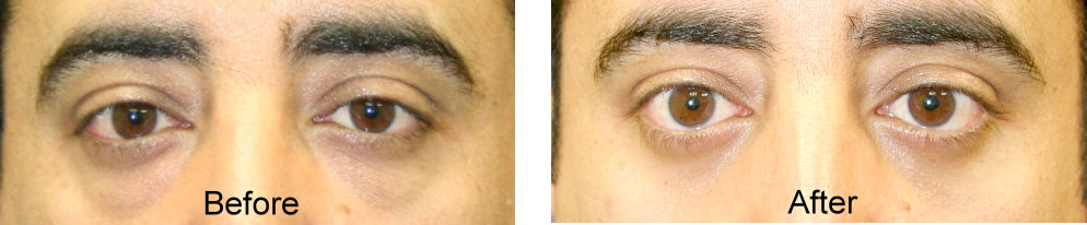 lower eyelid surgery male