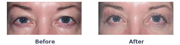 Upper Eyelid Surgery Patient Before and After