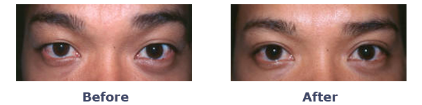 Asymmetric Upper Eyelid before-and-after photo