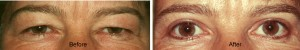 upper eyelid surgery before after